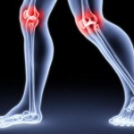 Degenerative joint diseases