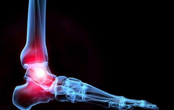 Ankle-Sprain-600x380